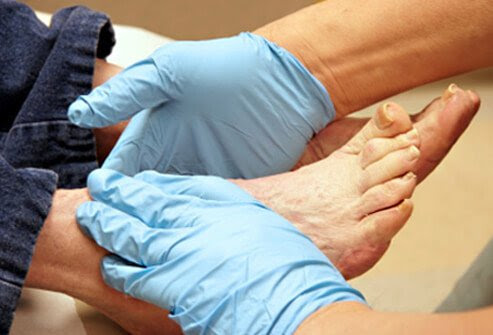 Visit your doctor or podiatrist for regular check-ups on your feet, even if you don't have any foot problems.