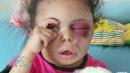 An injured Yemeni child's image went viral. Then she disappeared to Saudi Arabia.