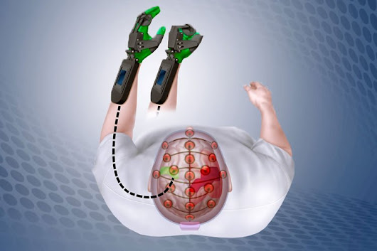 Mind Controlled Device Helps Stroke Patients Retrain Brain to Move Paralyzed Hands - Neuroscience News
