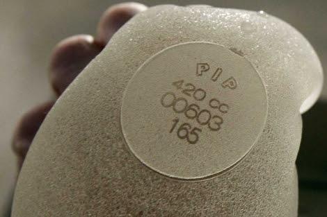La silicona defectuosa utilizada en las prótesis.  Reuters