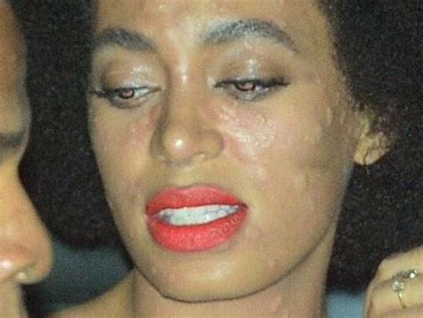 Solange talks about her wedding day allergic reaction