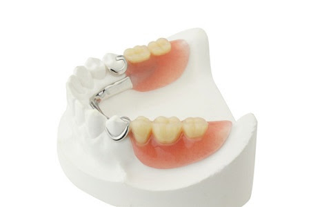 Services provided by Longview area dentist include the fabrication of partial dentures