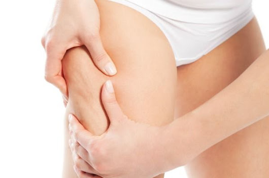 How To Get Rid Of Cellulite Naturally — Wellnessbin