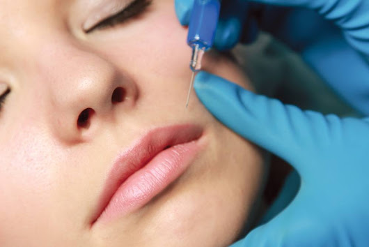 Why Should You Get Cosmetic Fillers - News - DailyBeauty - The Beauty Authority - NewBeauty