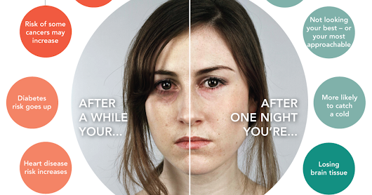 Disturbing Picture Shows What Sleep Deprivation Will Do To You Starting With The First Night