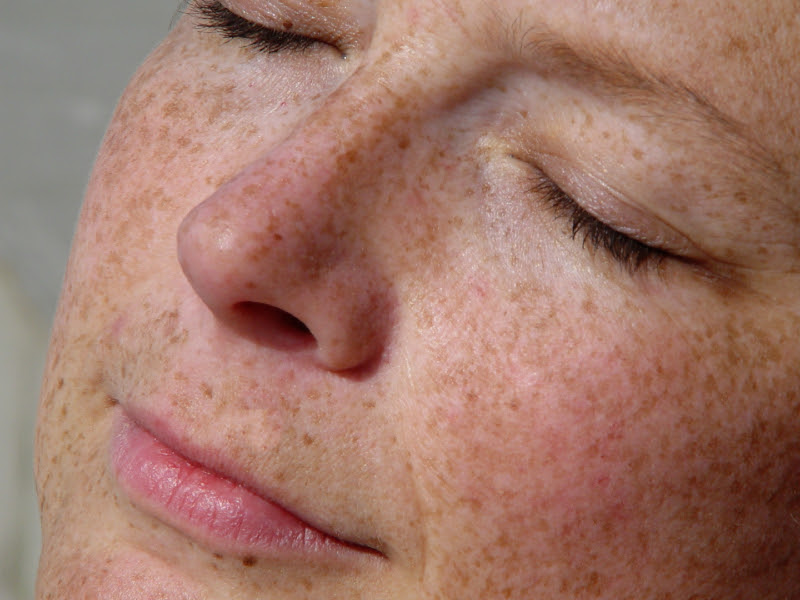 Hydroquinone- How Long Can I Use It?No Nonsense Beauty Blog