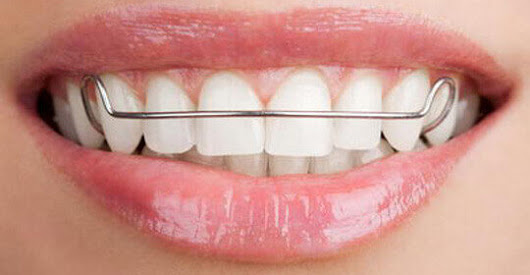 After Orthodontic Treatment - Retain Your New Smile Forever