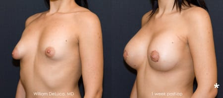 Tubular & Tuberous Breast Correction | DeLuca Plastic Surgery - NY