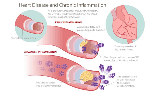Inflammation: Root of the Aging Process