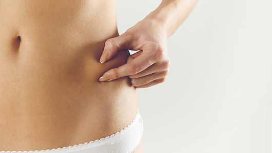 Is Liposuction Right for Me? Will Surgical Arts