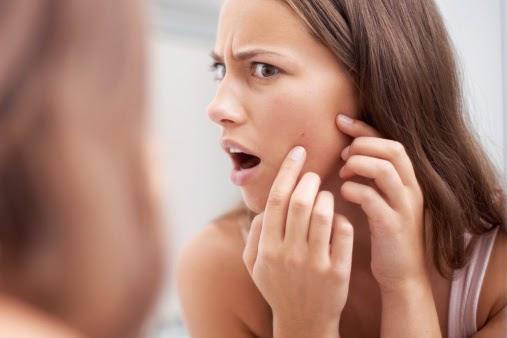 Jak pielęgnować cerę trądzikową?
