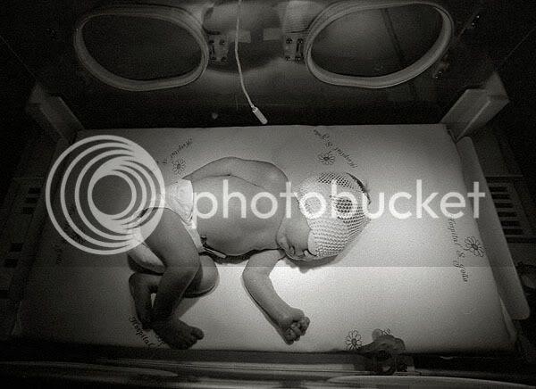Criança recém-nascida dentro de incubadora em sessão de fototerapia