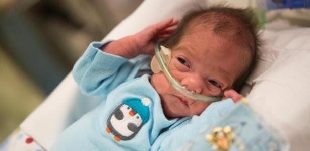 Angel Perez nasceu dois meses após sua mãe, Karla, ter o diagnóstico de morte cerebral