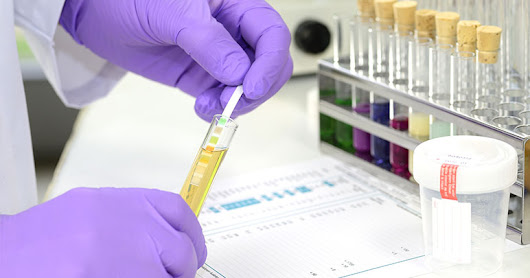 Why Is Drug Testing In The Workplace Important? - ProHealth