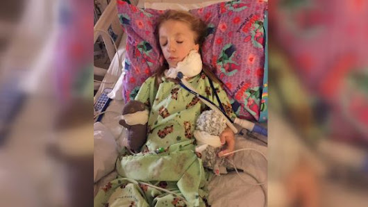 8-year-old girl with rare cranofacial condition goes through 18th surgery