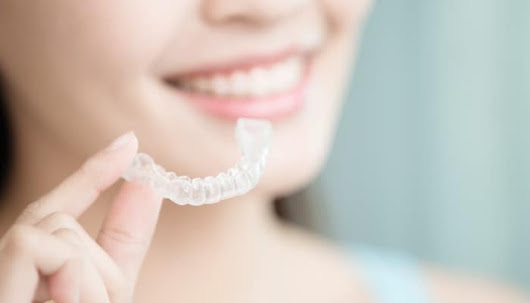 How Do Invisalign Clear Aligners Work? | Cary Family Dental