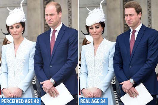 Prince William looks EIGHT YEARS older than he is because 'hair loss ages men faster than any other physical trait'