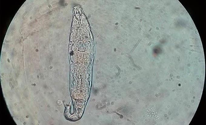 UN ANIMAL MICROSCÓPICO SOBREVIVE 24.000 AÑOS EN EL PERMAFROST SIBERIANO