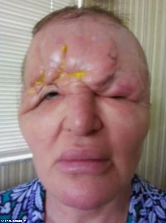 Carol Bryan, 54, from Florida had fillers in 2009, but was left hideously disfigured after her forehead began to collapse as well as being left blind in her right eye