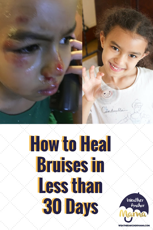 How to Heal Bruises in Less than 30 Days | Weather Anchor Mama