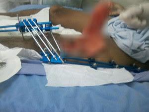 Gaze teve de ser retirada da perna do paciente em cirugia; médico disse à esposa do paciente que era 'normal' deixar gaze no ferimento para ajudar a estancar o sangue (Foto: Arquivo pessoal)