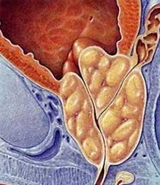 Dr John Yaxley Brisbane Urologist Specialising In Prostate Cancer Benign Prostate Hyperplasia Bph