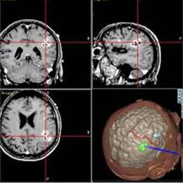 Tres cortes de imagen por IRM de un cerebro y una imagen tridimensional de un cerebro