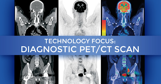 Technology Focus – Diagnostic PET/CT Scan at Summit Cancer Centers