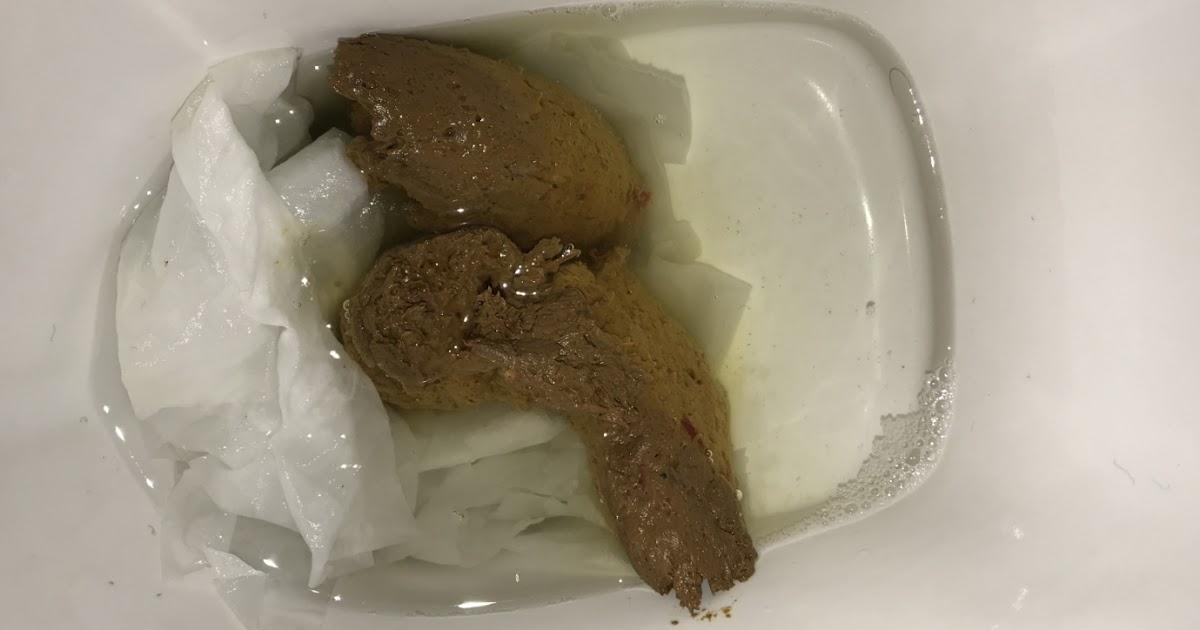 Acid Reflux Yellow Stool - Stools Item