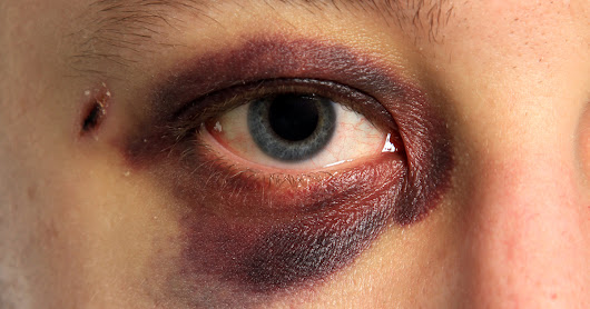 7 Most Common Eye Injuries and How to Treat Them
