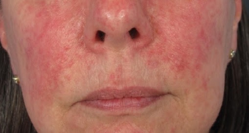 Rosacea Skin Condition May Warn Of Serious Diseases