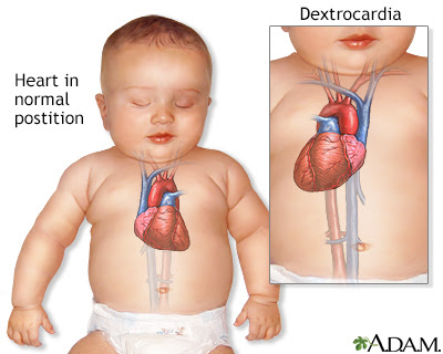 Image result for dextrocardia