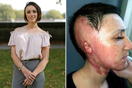 The new acid laws are a start - but they don't go far enough, says attack survivor Adele Bellis