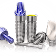 Dental Implants and The Dry Mouth Patient - Scarborough Dentist | Upper Bluffs Family Dentist