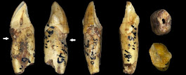 Ancient Human Ancestors Had The Same Dental Problems as Us, Even Without Refined Sugars And Fizzy Drinks
