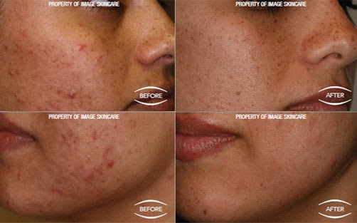 Timeless Medical Spa Physician Grade Skin Care Products