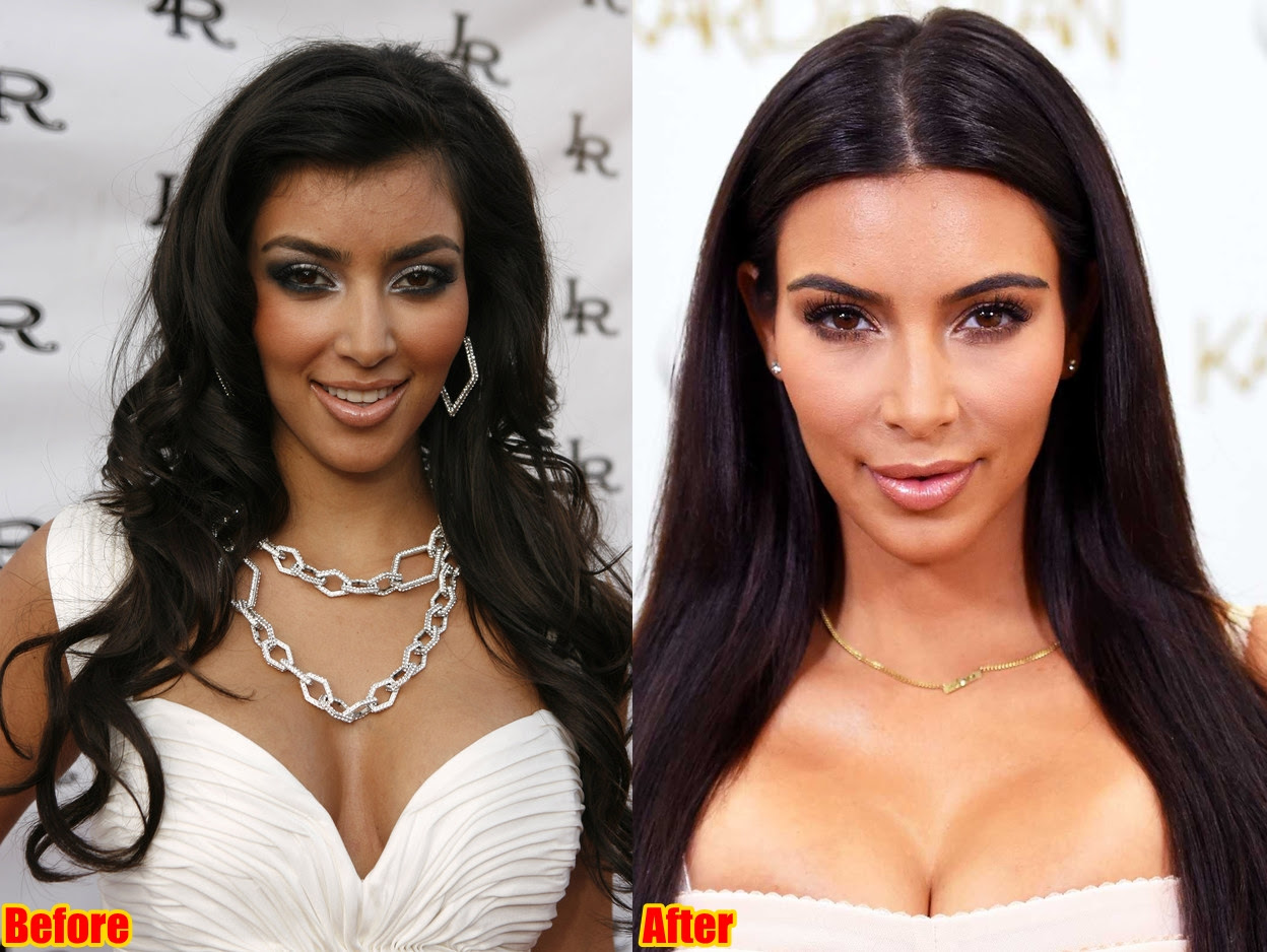Kim Kardashian Face Surgery Before And After Photos