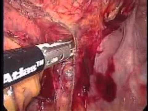 Laparoscopic Low Anterior Resection (TME) for Carcinoma of the Recto-Sigmoid Colon