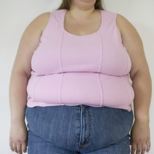 The rising state of obesity among women | India Obesity