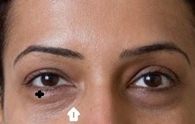 Surgery to Remove Dark Circles | Dark Eye Circles Laser ...