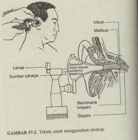 otoskop