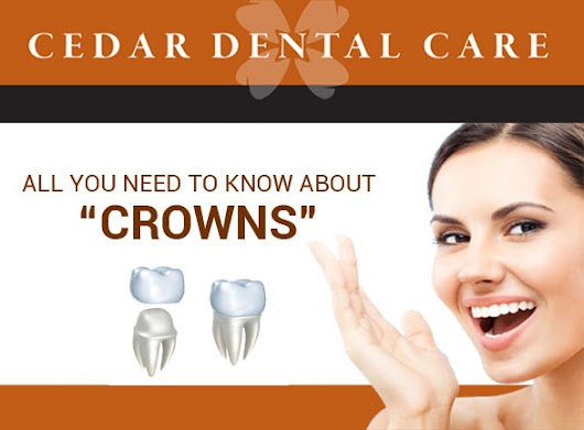 "All you need to know about ""Crowns"""