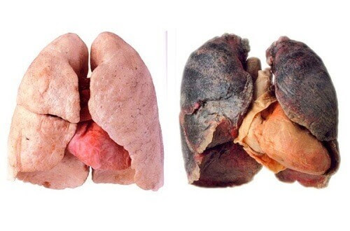 Tips for Cleaner Lungs - Step To Health