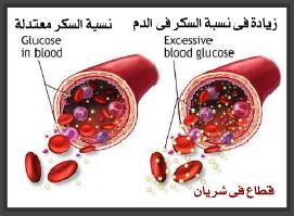 صورة توضيحية للضرر الي يسببه السكري على الشرايين