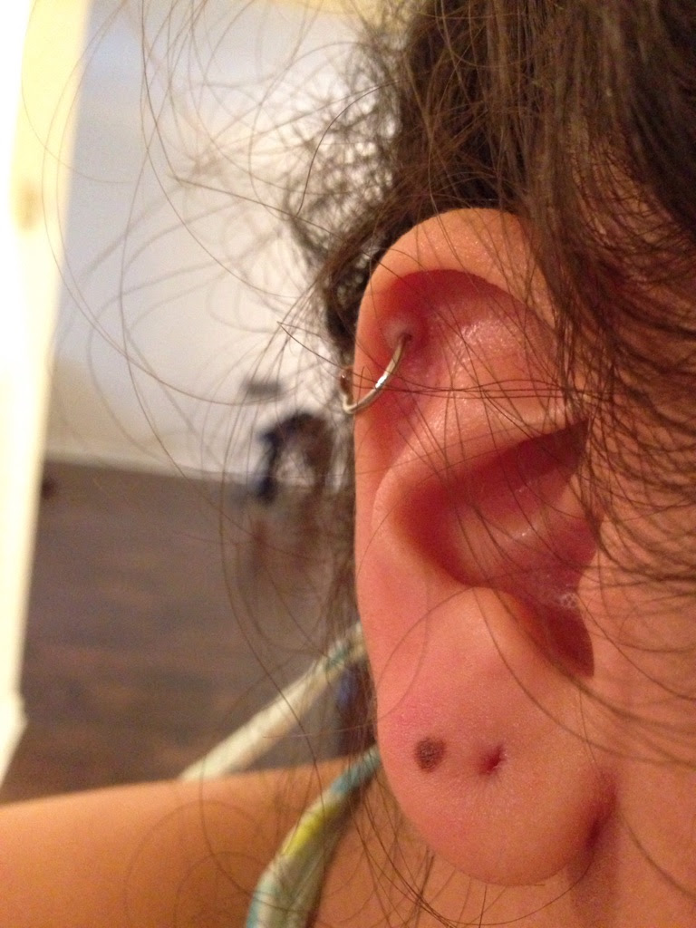 Cartilage Piercing Healed Like This I Dont Know How To Get Rid