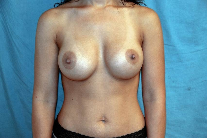Best Breast Growth During Pregnancy Permanent  What Are The Symptoms -9067