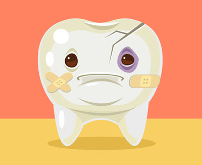 Intermittent Tooth Pain and Cracked Tooth Syndrome