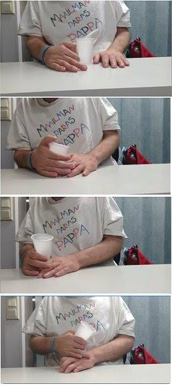 Paraplégicos recuperam movimentos com terapia de estimulação magnética