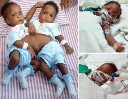 Image result for Pictures of conjoined nigerian girls