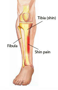 Shin Splints Everything Runners And Physio S Should Know Runningpains
